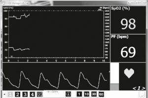 Biểu đồ nồng độ oxy trong máu ( biểu đồ SPO2 )